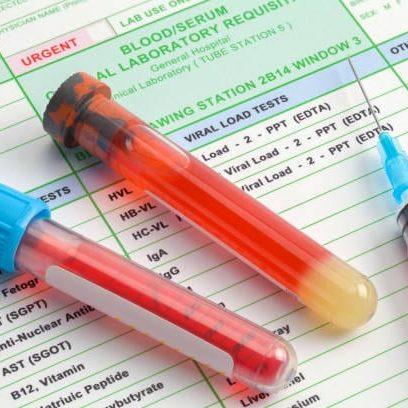 Drug Testing and Screening